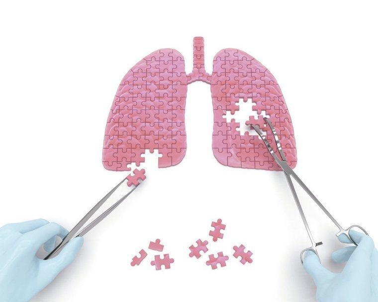吸菸被視為是肺癌最主要的危險因子,但在台灣,不吸菸肺癌患者卻逾半數。圖/...