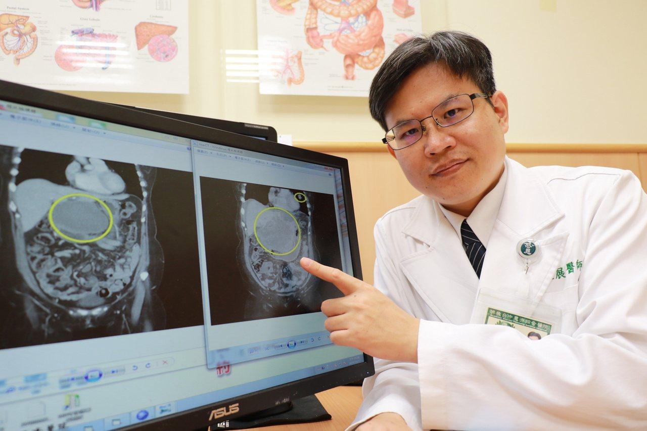 台中慈濟醫院外科部主任余政展說明病人治療前後腫瘤變化。 圖/台中慈濟醫院提供