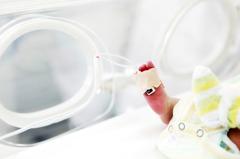 美國意外早產醫藥費高達近300萬!母求援助希望群眾募資