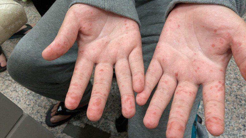 國小五年級學童雙手起小水泡 確診腸病毒。 圖/大甲李綜合醫院提供