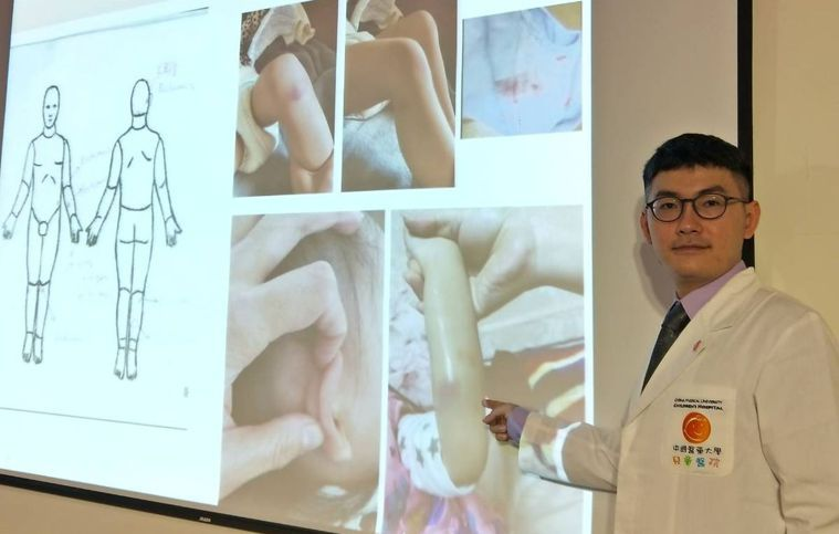 醫師蘇旻昱分享,二歲半女娃尿布上面都是血,身上多處瘀青,甚至手臂有腫脹血塊,經就...