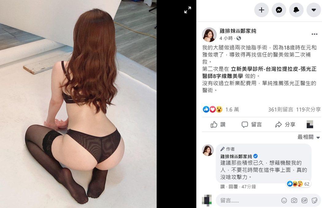 鄭家純今天在臉書PO文稱「18歲時在元和雅做壞了,導致得再找信任的醫美做第二次補...