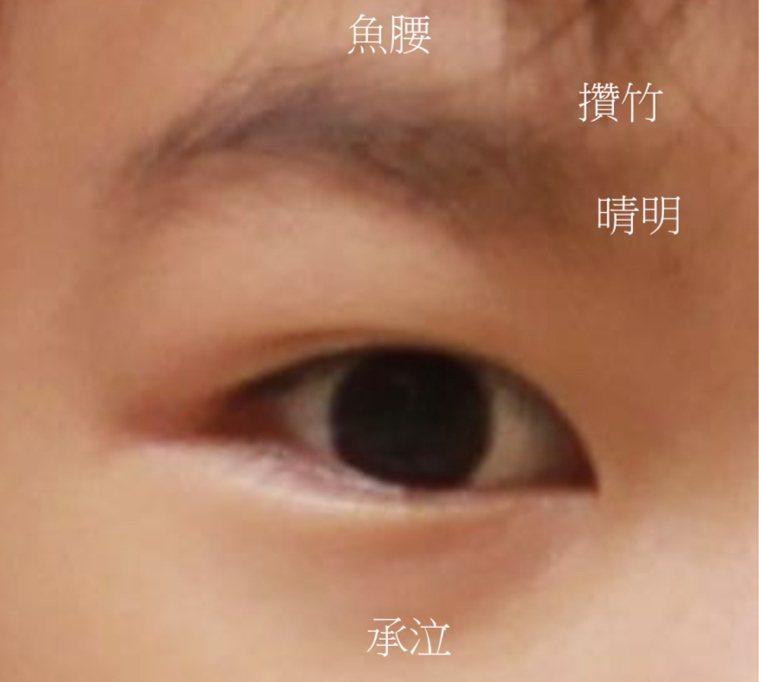 用3C太多眼睛疲勞,中醫師建議可以先熱敷,再按壓眼周的睛明、攢竹、承泣、魚腰等穴...