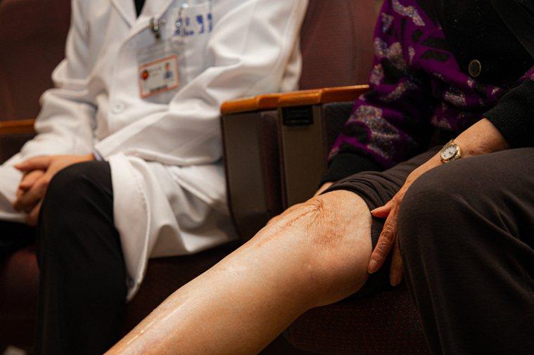 72歲的李女士受退化性關節炎所苦,醫師建議接受栓塞治療。圖/三總提供