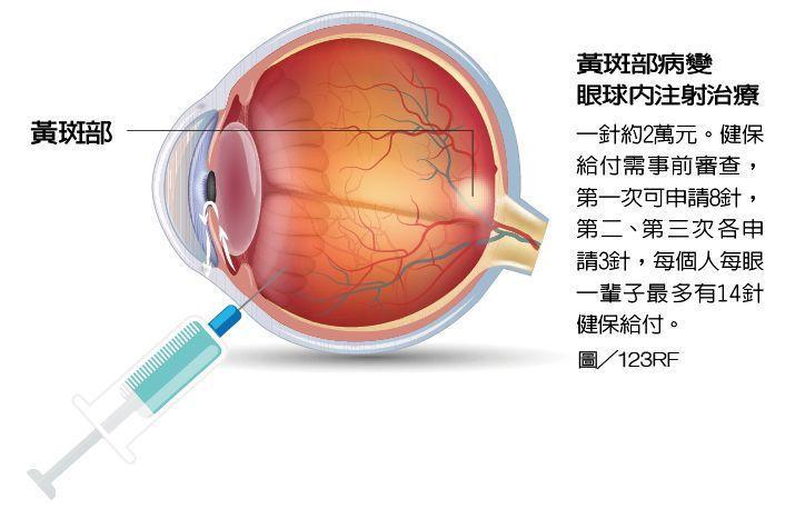 黃斑部病變眼球內注射治療 圖/123RF 製表/元氣周報