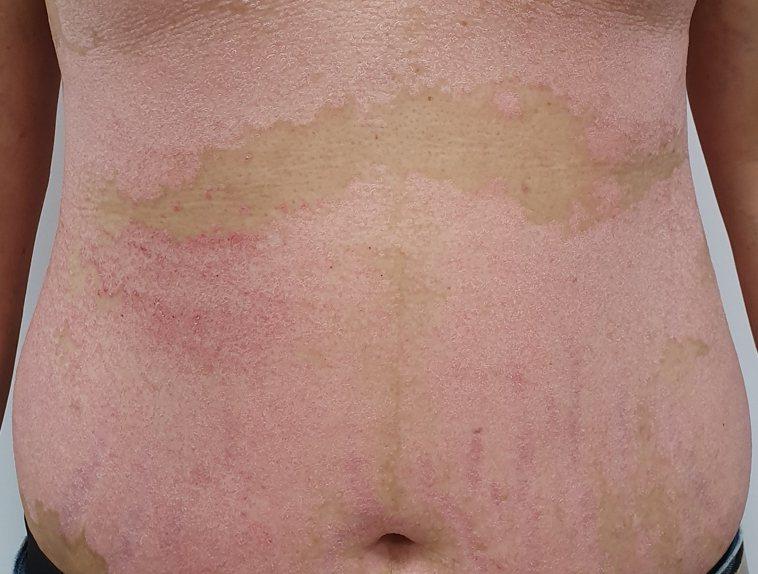台中榮總皮膚科主任陳怡如今天說,冬天,乾癬看診人數會明顯增加。圖/台中榮總提供