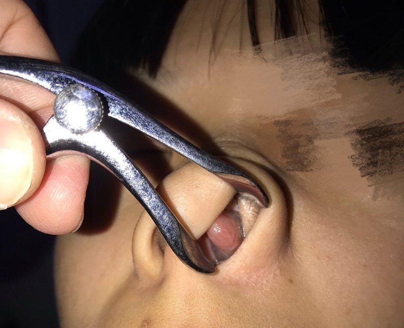 衛福部南投醫院醫師檢查女童鼻腔發現鼻甲腫脹,粉色肉團完全塞住鼻腔。圖/南投醫院提供