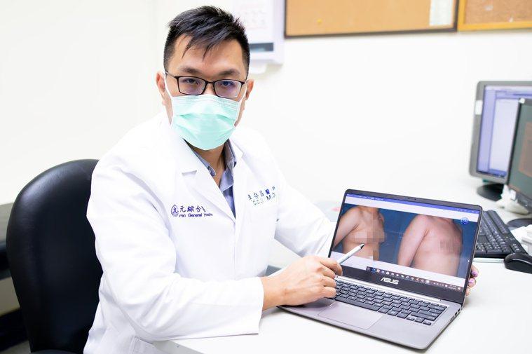 東元綜合醫院整形外科醫師李存昌表示,男性女乳症通常好發於青少年和老年兩種族群,其...