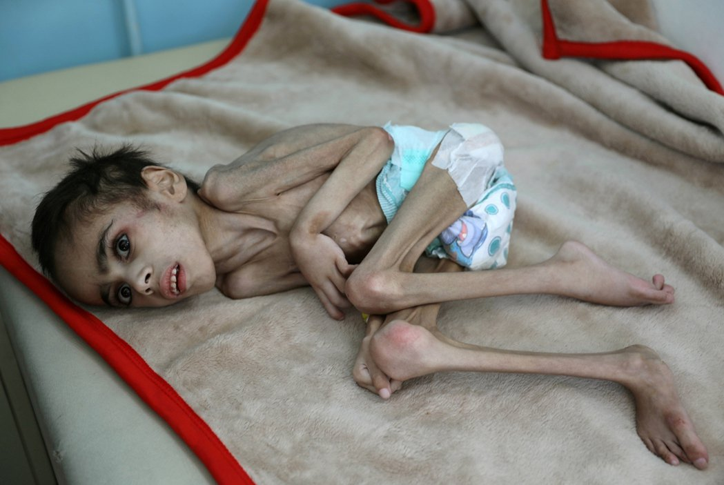 目前,葉門全境有超過80%的人口必須仰賴國際人道救援,2分之1的人口則隨時會餓死...