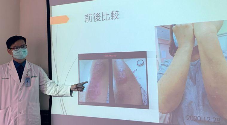 醫師陳柏谷說明,女患者經接受中醫輔助治療後,揮別惱人的乾癬、頭痛問題。圖/中山附...