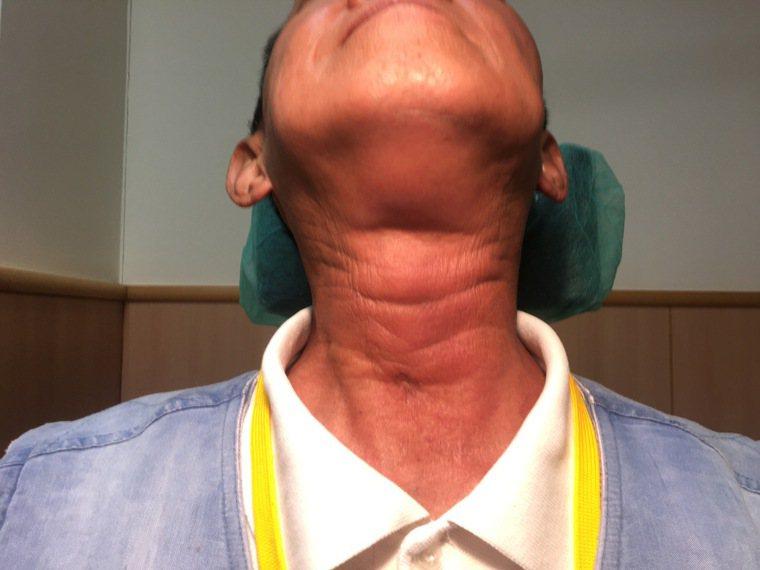 50多歲黃姓男子因下咽腫瘤遲遲不治療,腫瘤擠滿喉部到無法呼吸被送急診。圖/台中慈...