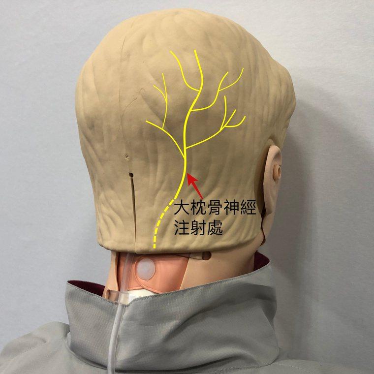 紅色箭頭處為大枕骨神經注射處。圖/台大醫院新竹分院提供