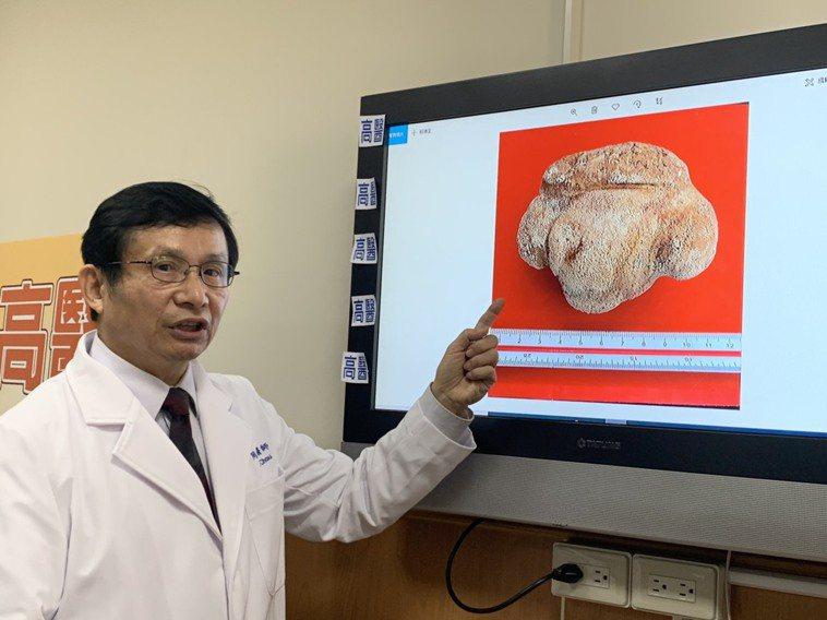 高醫為一名86歲老婆婆取出一大顆超過9公分的膀胱結石。記者徐如宜/攝影