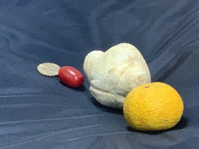 86歲老婆婆取出一大顆超過9公分的膀胱結石,比柑橘、小番茄、50元銅板都要大得多...