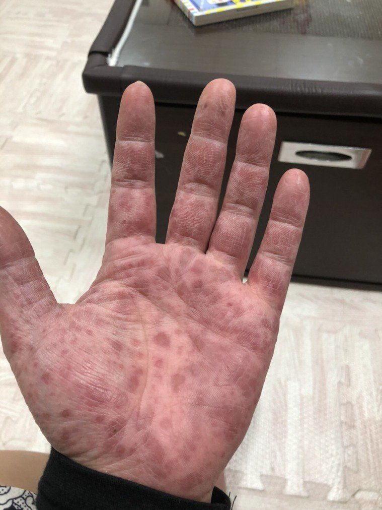 陳先生的手、腳出現明顯疹子。圖/豐原醫院提供