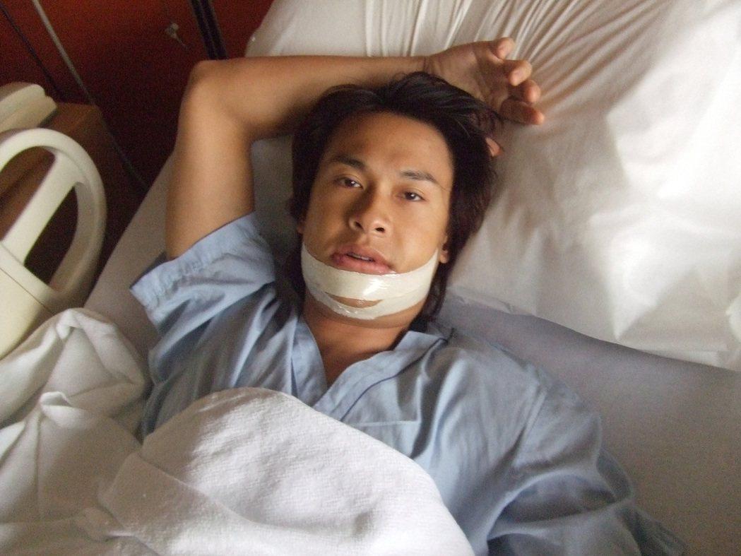王建復在新加坡發展演藝事業時曾因牙齒咬合不正動過正顎手術,復原期下巴很腫。圖/王...