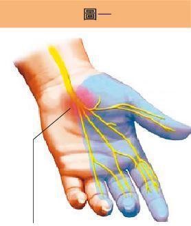 腕隧道裡面有正中神經通過,壓迫到神經,會造成橈側三指半的麻痛感。圖/陳志鎧醫...
