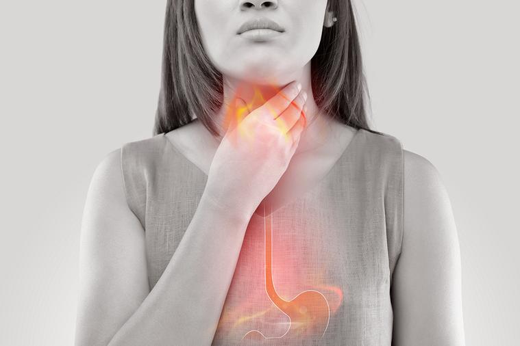 胃酸逆流是現代人常見的胃疾,不只有胸口灼熱的不適感,還可能發生慢性咳嗽,尤其在夜...