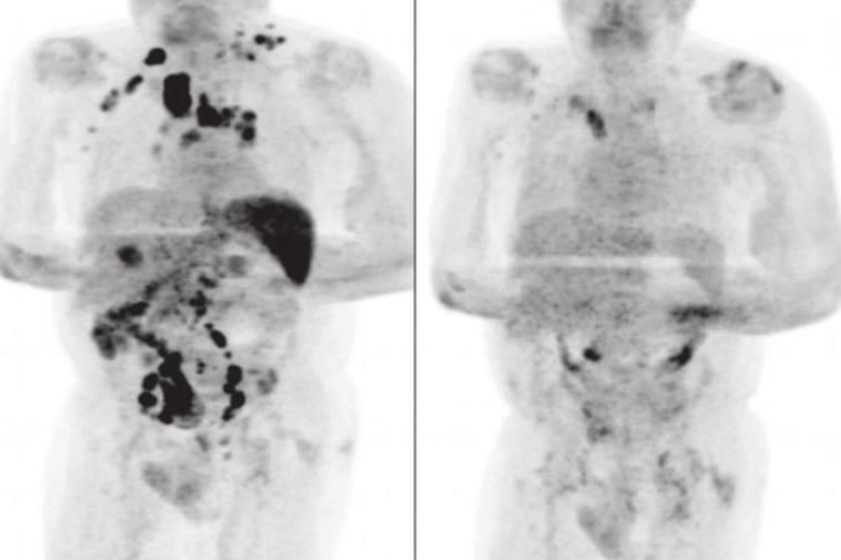英國有醫學雜誌刊出臨床病例,指1名患有末期淋巴癌的六旬男子感染新冠肺炎後,體內的...