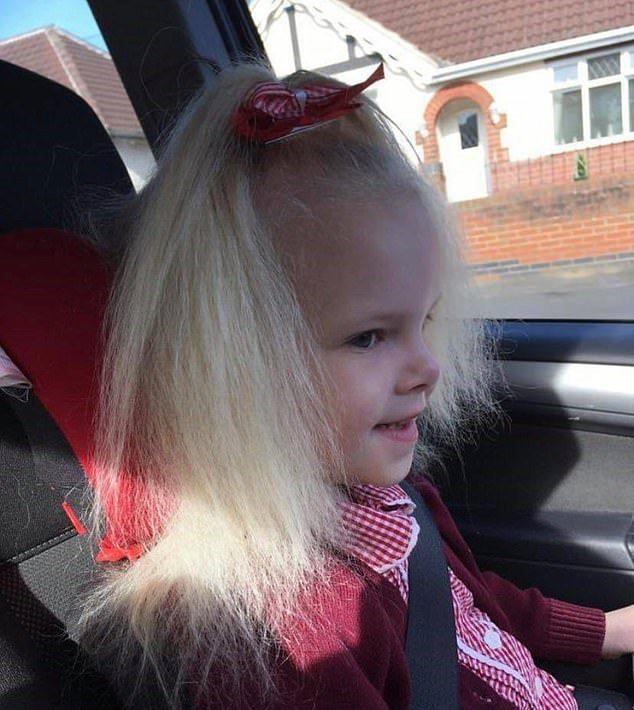 女童在學校因為「頭髮」受到同學歡迎。dailymail