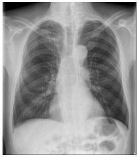 醫師洪盈盈說明,62歲上班族男子接受胸部X光檢查,未顯示肺癌。圖/洪盈盈提供