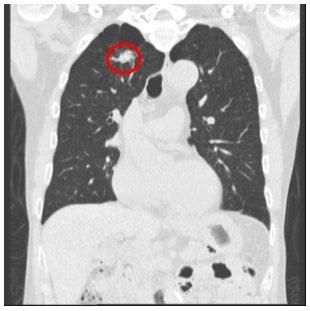 醫師洪盈盈說明,62歲上班族男子接受肺部低劑量電腦斷層檢查,肺癌清晰可見(紅圈處...