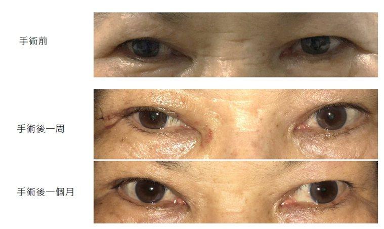 倒插睫毛手術可以一勞永逸解決。記者周宗禎/翻攝