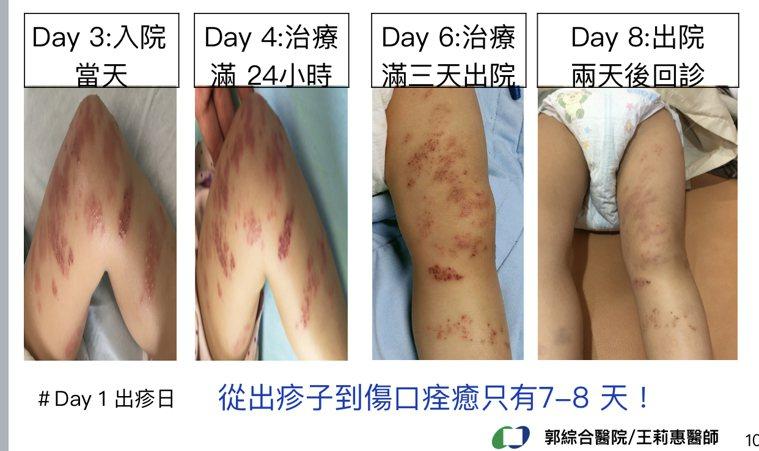 台南市兩歲女童注射水痘疫苗後得到帶狀皰疹,症狀較成人輕微而且恢復時間短。圖/郭綜...