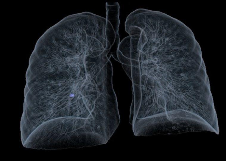 透過LDCT進行高解析度肺結節分析【示意圖,非新聞當事人狀況】。圖/台中榮總埔里...