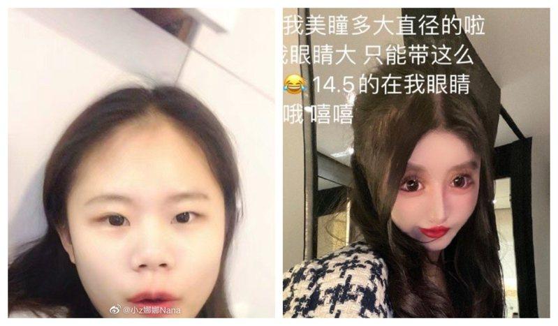 中國網紅周楚娜自13歲起迷上整形,至今已整型逾百次!圖擷自@小z娜娜Nana