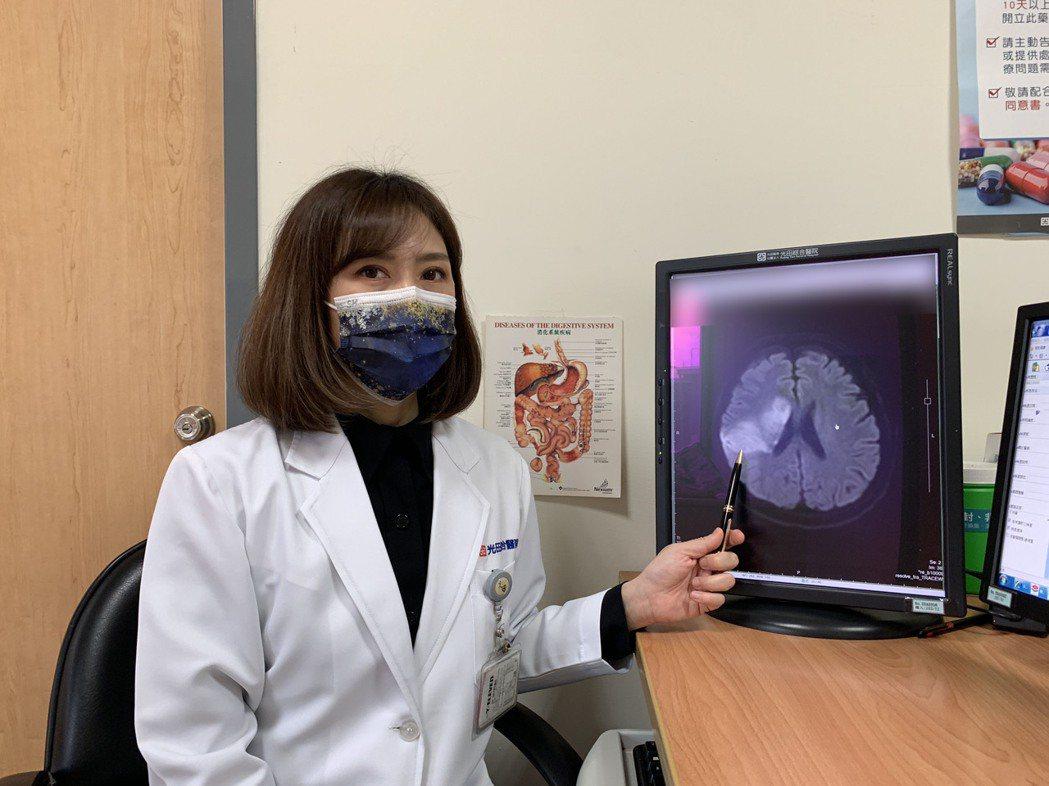 神經內科醫師林毓慧表示患者因動脈硬化阻塞造成缺血性腦中風。 光田綜合醫院/提供。
