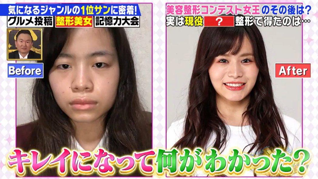 23歲的七海覺得自己外貌太醜,最後決定整形。圖/擷自網路