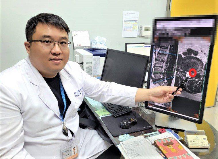 長安醫院神經外科醫師朱彥澤說,與傳統開放式脊椎手術不同,微創脊椎手術是透過顯微鏡...