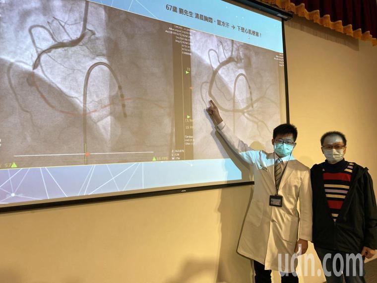 醫師陳科維(左)說明,67歲劉姓患者(右)做完心導管後,原本堵塞的血管(左圖虛線...