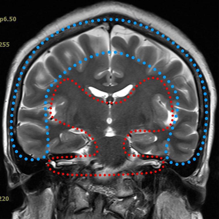 腦部核磁共振檢查冠狀切面,藍色圈內為大腦皮質,屬於聽覺解讀系統,幻聽來源處;紅色...