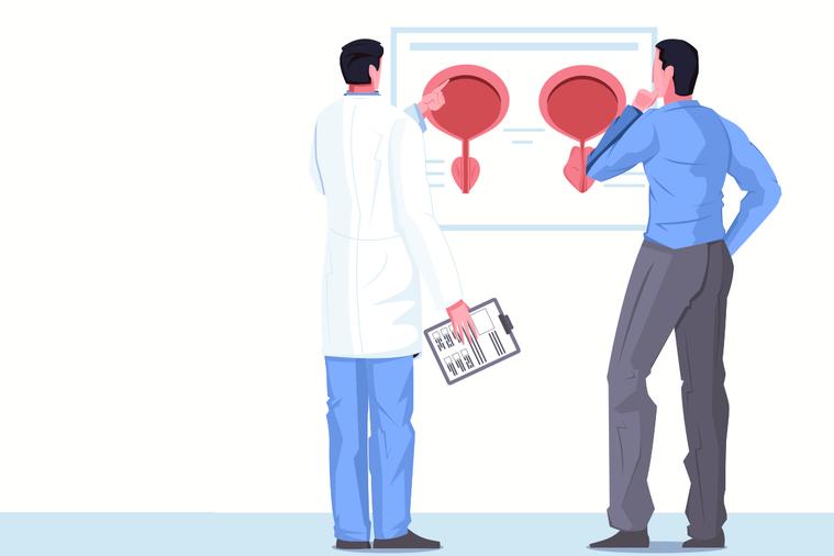 前列腺癌是在前列腺部位產生的惡性腫瘤。大多數前列腺癌生長速度較為緩慢,並且早期可...