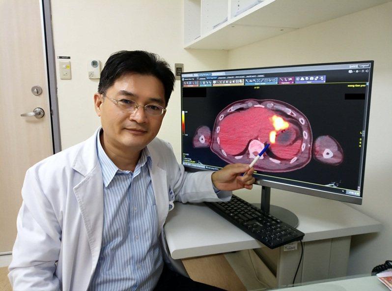 趙剛宏主任表示正子造影檢查利用觀察葡萄糖攝取異常的部位,來找出惡性病灶。圖/大千綜合醫院提供