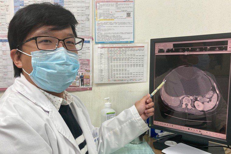 南投醫院外科醫師廖師賢指出陳姓女病患腹部出現22公分肝囊腫,壓迫到周邊器官,導致...