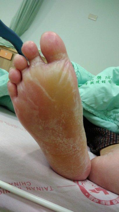 台南市一名78歲老婦腳底被電暖器燙出一個大水泡,幾乎整個腳底都被含蓋。圖/安南醫...