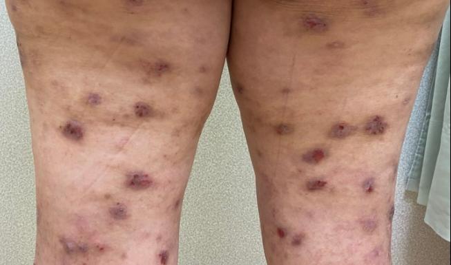 異位性皮膚炎是過人常見疾病之一,讓人發癢難耐,醫師建議民眾若有此情形,要盡快就醫...