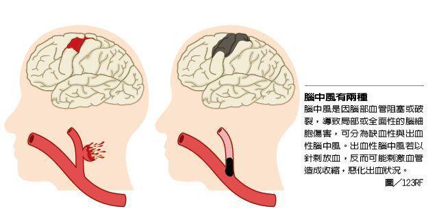 腦中風有兩種 圖╱123RF