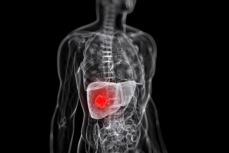 美國多個學會聯合公布,呼籲糖尿病人應該定期做肝臟篩檢,以避免不可逆的肝損害風險。...