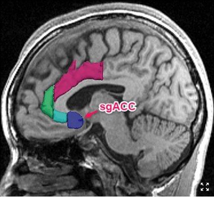 日常家務活動量較大者,其大腦灰質的sgACC體積也更大。並且這種更高的sgACC...