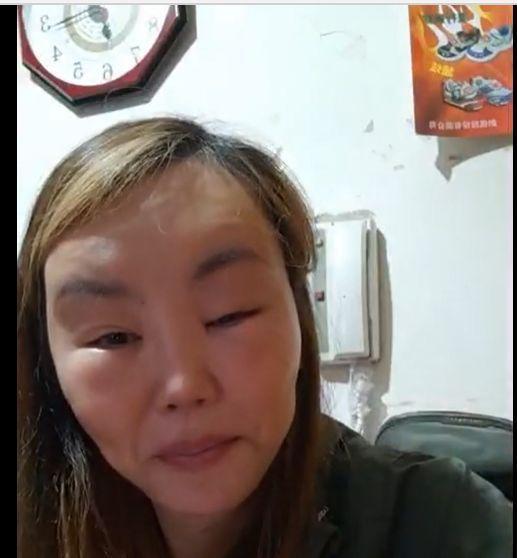 法拉利姐疑因整形造成發炎臉腫了一圈。圖/摘自臉書