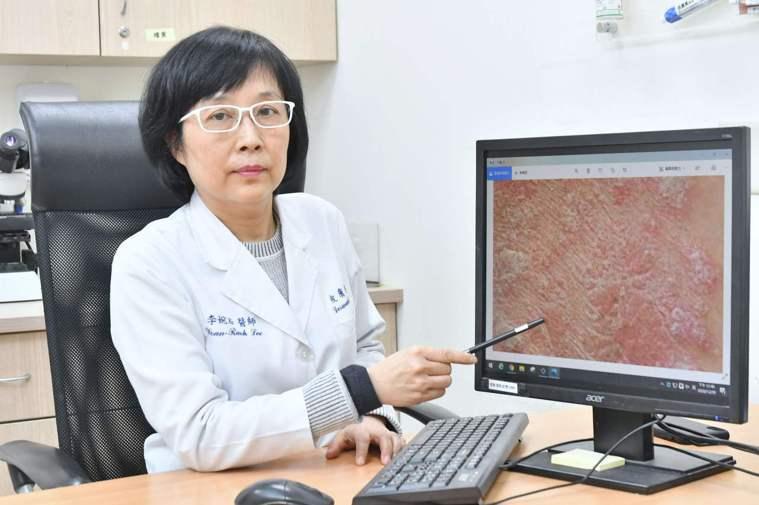 圖/李婉若醫師 提供