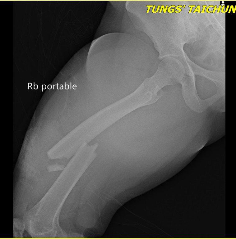 童綜合醫院醫師郭家孝,為女傷者進行骨折開放性復位內固定手術之右股骨幹骨折(術前)...