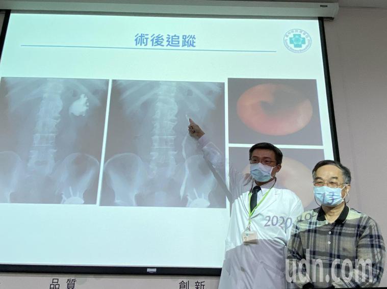 醫師陳正哲(左)說明,70歲陳先生(右)經接受機械手臂口腔黏膜輸尿管重建手術、拔...