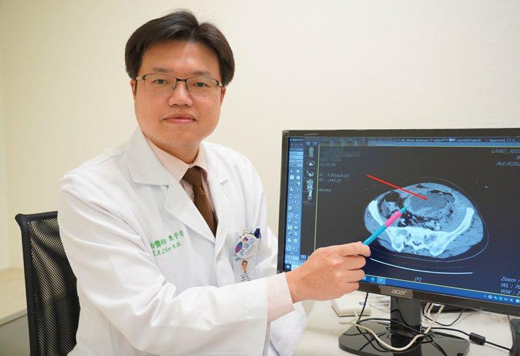 陳子安醫師強調大腸癌早發現治癒率很高。圖/聯新國際醫院提供