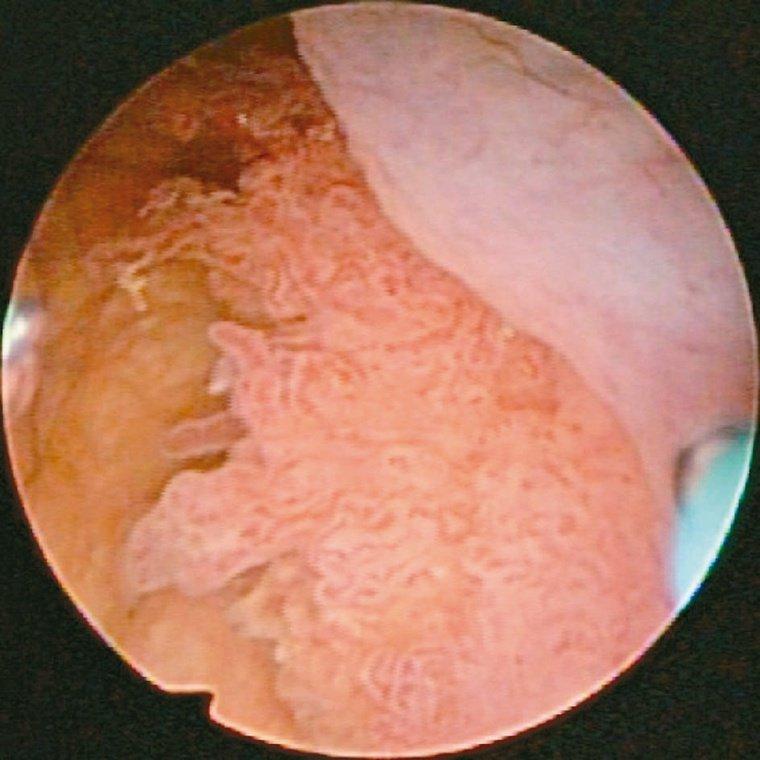 透過膀胱鏡,可見膀胱腫瘤破裂出血,所以產生肉眼可見的血尿。膀胱左側壁有陰影,進一...