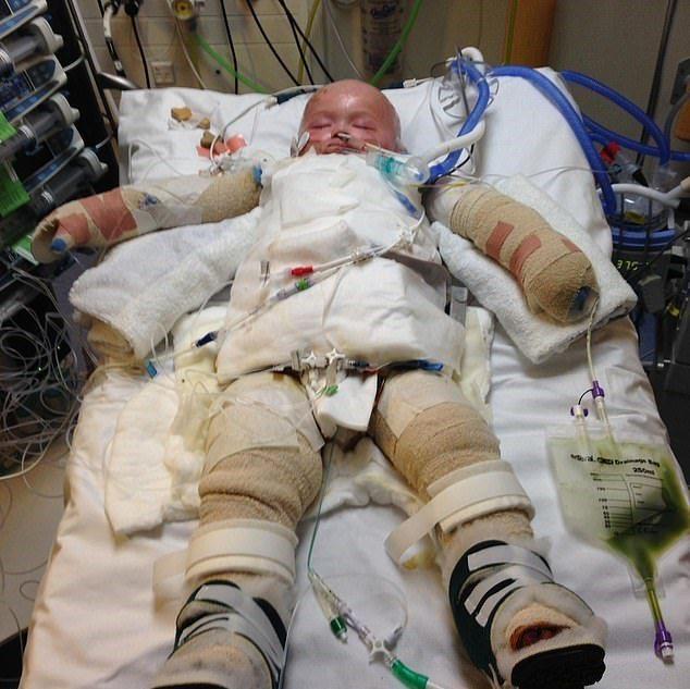 1歲半童不慎自行爬進滾燙的熱水裡,造成身上94%皮膚3到4度灼傷「皮膚還脫落到地板上」。圖/取自dailymail